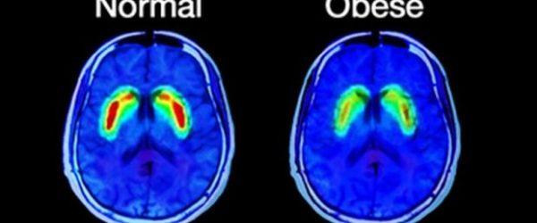 cervello scan